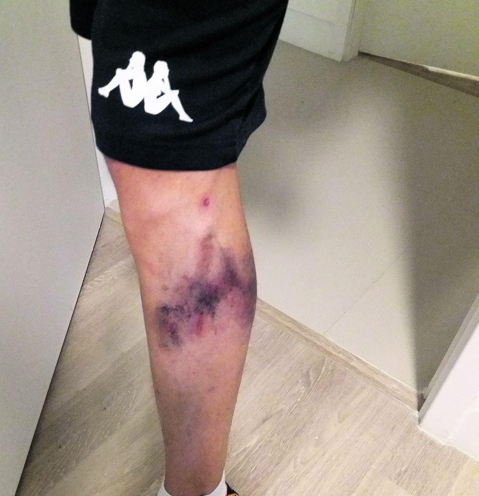 Când un sportiv s-a dat cu Autan, contra țânțarilor, iar apoi și-a dezbrăcat treningul ca să se schimbe în șort, piciorul i s-a albăstrit de la culoarea treningului