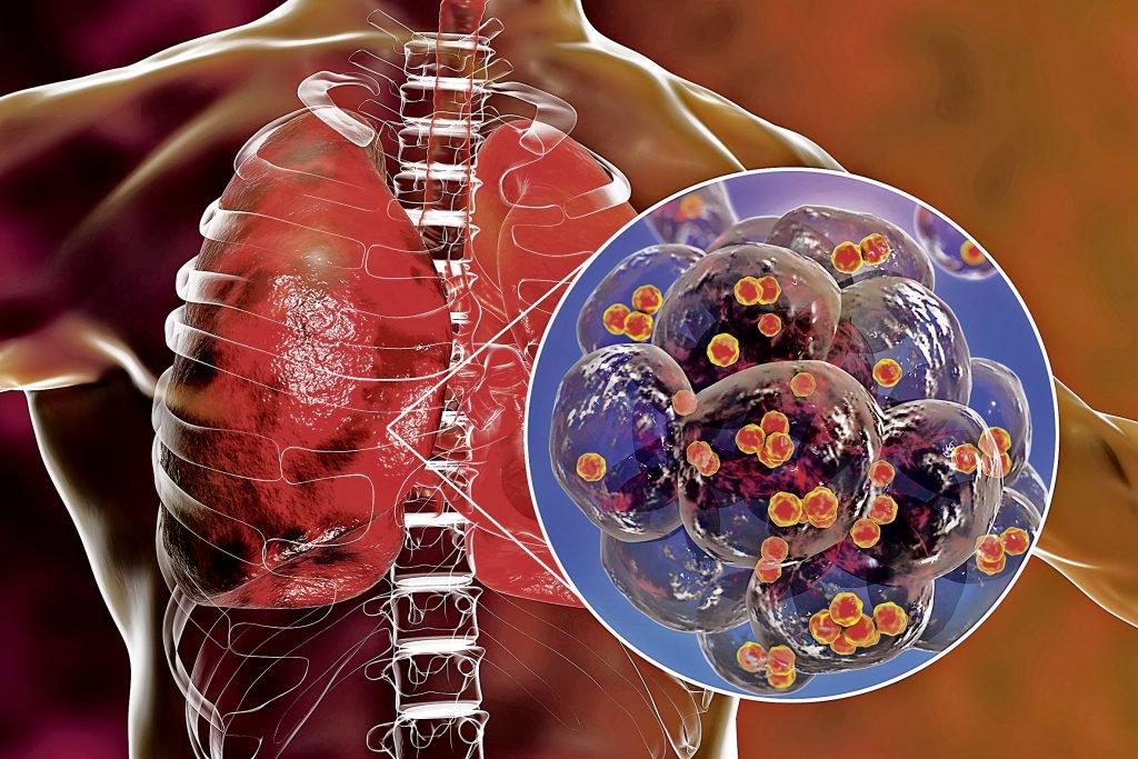 Stafilococul auriu e rezistent la tratament antibiotic. În infografie, bacteria, în interiorul alveolelor pulmonare